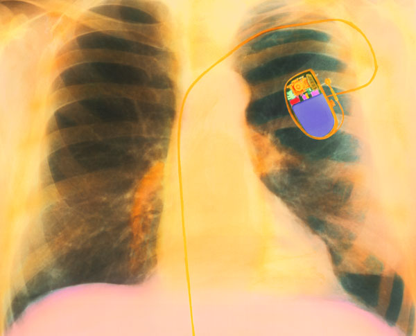 """""""Medical Experts Warn: Do Not Wear Smartphones Close to Your Pacemakers """""""