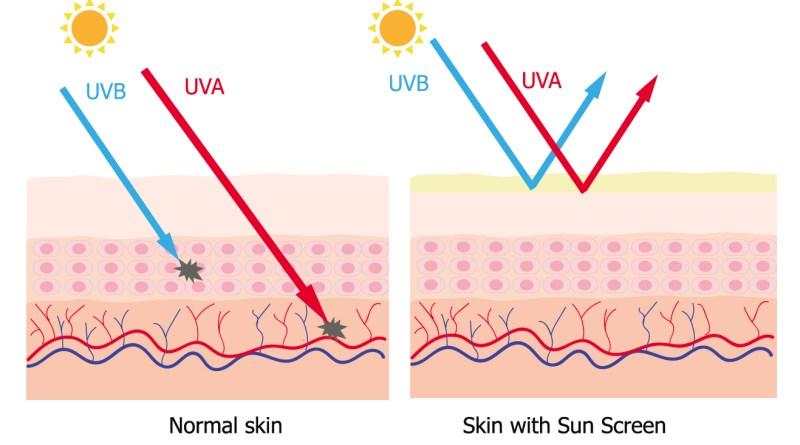 Sonnenallergie - UVa, UVb Strahlen
