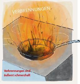 Verbrennungen beim Kochen. Haushaltsverletzungen