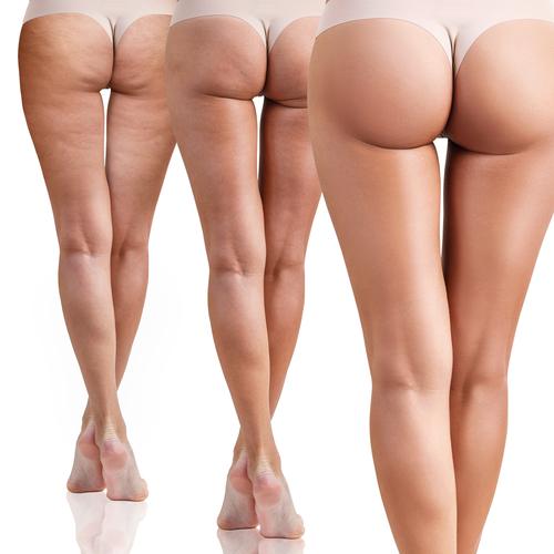 Schrittweise sichtbare Besserung der Cellulite an Beinen und Po. Cellulite Behandlung