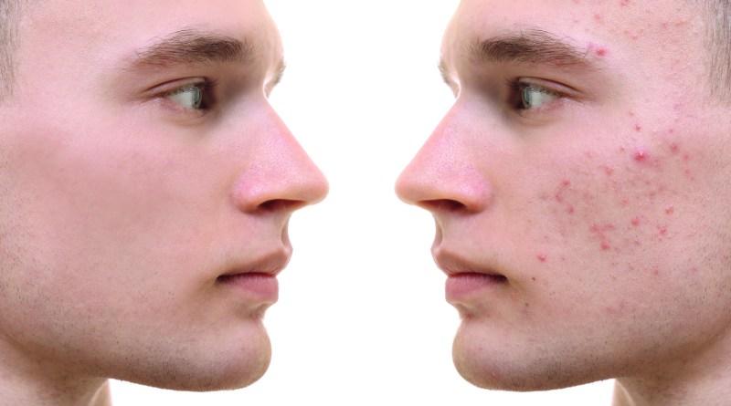junger Mann mit Hautvergleich. Links reine Haut. Rechts unreine Haut. stressbedingte Hautunreinheiten