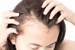 schwindender Haaransatz. anlagebedingter Haarausfall