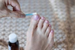 Nagelpilz Behandlung. Zehennägel werden mit Mittel behandelt.