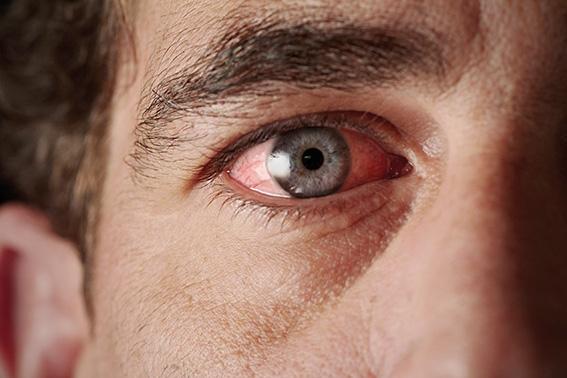 Pollenallergie: Das Auge juckt und brennt