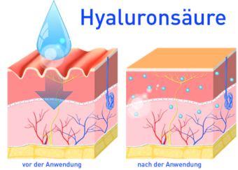 Hautschichten. Querschnitt Haut. Hyaluronsäure. Falten mildern