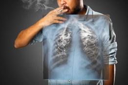 Rauchender Mann. Raucherlunge. Lungen mit Rauch. Atembeschwerden