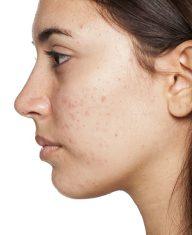 Profil einer jungen Frau mit Akne. Hautpflege im Frühling