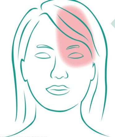 Illustration einer Frau mit Migräne. Bereich eingefärbt. Mutterkraut