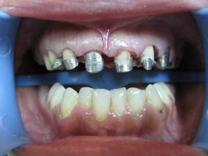 Pacijent 16 (slika 2)