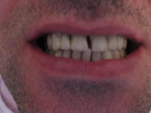 Pacijent 6 (slika 1)