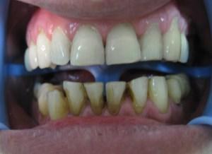 Pacijent 15 (slika 1)