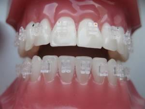 ortodontske-bravice-004