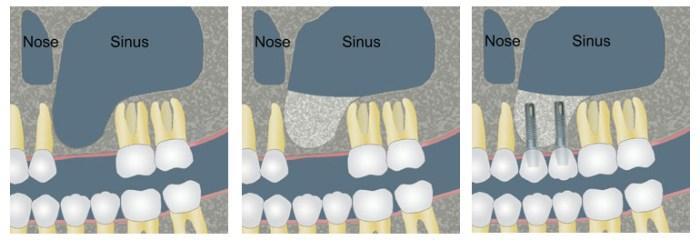 sinus-lift-aponia-dental-center