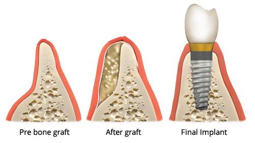 artificial-bone-aponia-dental-center