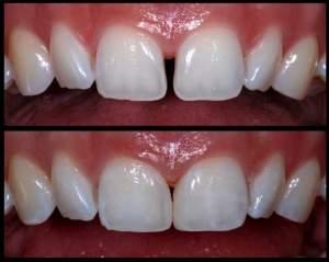 The case of necessary diastema closure (the gap between teeth)