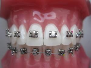 ortodontske-bravice-001