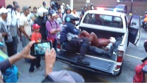 Queman a joven en Altamira al confundirlo con ser chavista