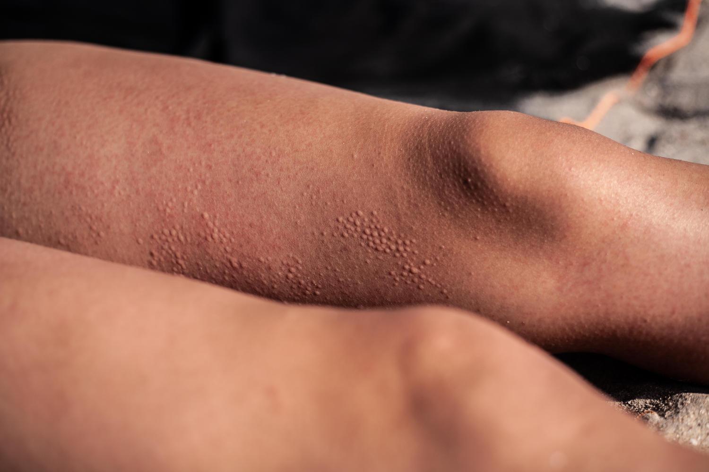 sonnenallergie ursachen behandlung apotheke sterzing