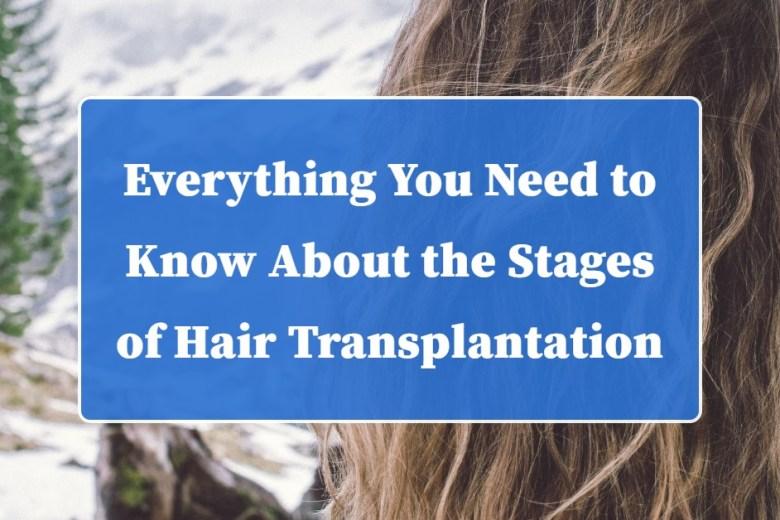 Hair transplants Los Angeles