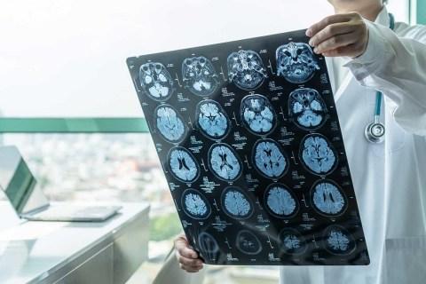 needing a neurologist