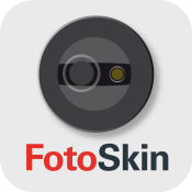 Prevención y detección del cáncer de piel con FOTOSKIN