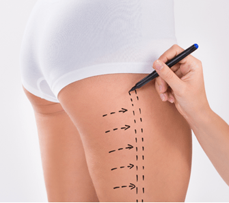 liposuction surgery in Leawood