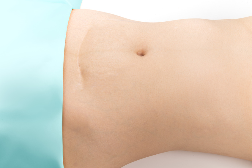 What you need to know about C-Section?