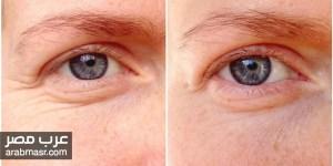 التخلص من تجاعيد العين وعلاجها بطرق بسيطة تعرف عليها الان