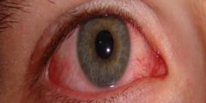 للتخلص من التهاب العين طريقة سهلة ومفيده للعين تعرف عليها الان