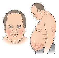 الكورتيزون وزيادة الوزن