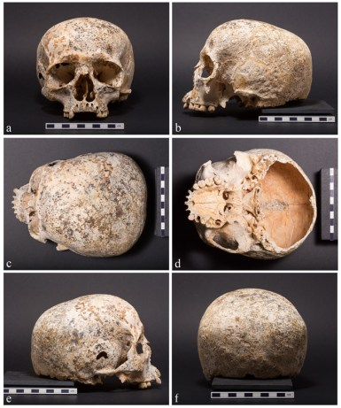 The surviving portion of Ava's cranium