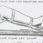 Double Incline Leg Splint – Illustration from Civil War Medicine by C. Keith Wilbur.