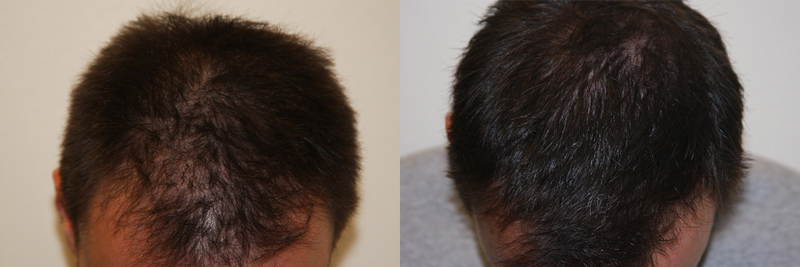 mens-hair-restoration-11