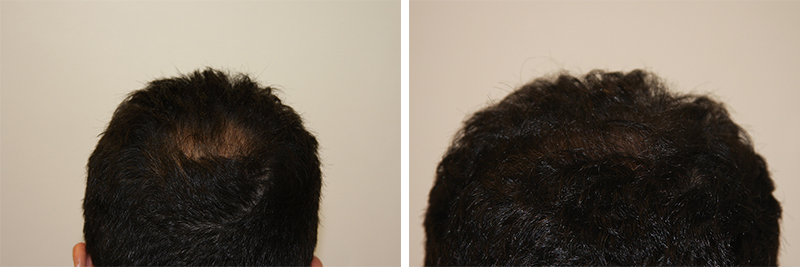 mens-hair-restoration-17