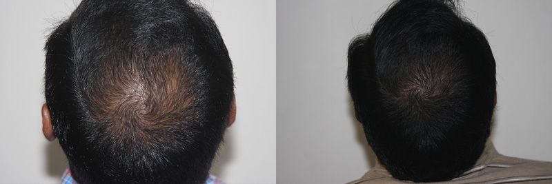 mens-hair-restoration-23