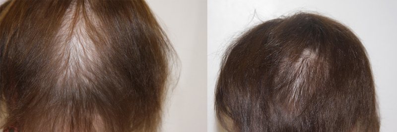 womens-hair-restoration-3