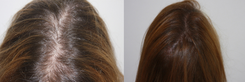 womens-hair-restoration-5