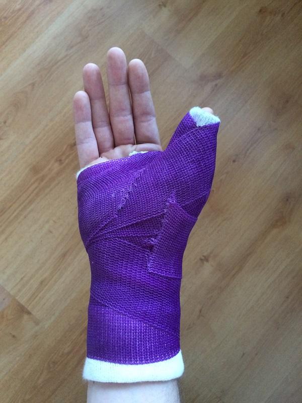 Soft Cast unieruchomienie prawego kciuka