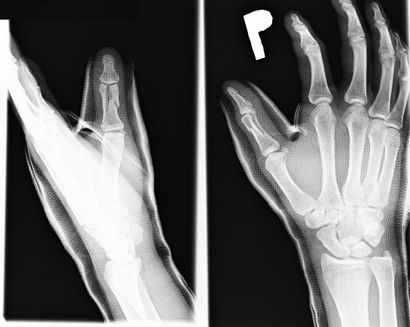 złamanie wieloodłamowe przezstawowe paliczka bliższego kciuka prawej ręki