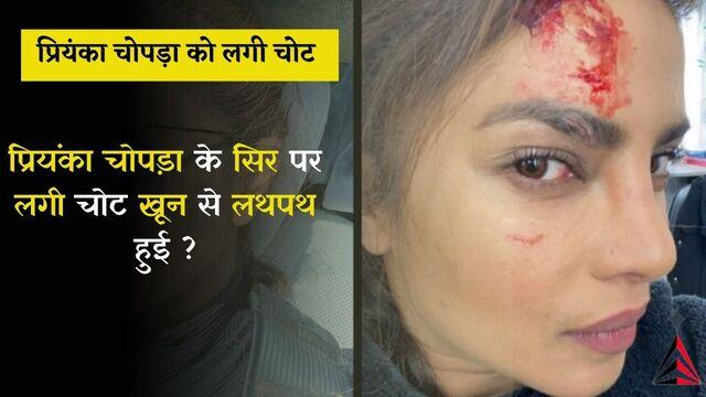 प्रियंका चोपड़ा को लगी चोट