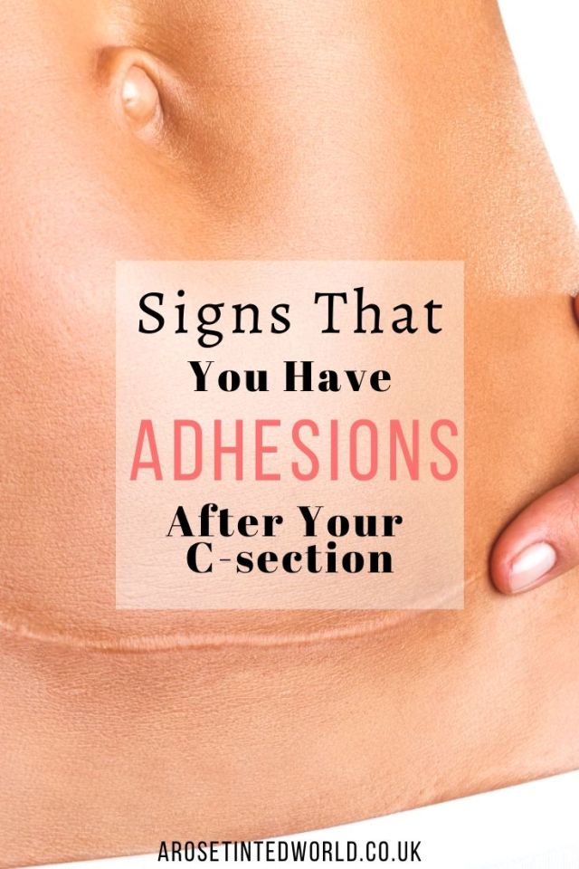 Adhesions after a C Section - problems after a caesarean section are a more common post birth postpartum complication. Read on to find out what my symptoms were and what I have discovered about this condition. Also find out what the causes and possible solutions could be. Postpartum birth problems, childbirth and c-section recovery tips, recovery timeline