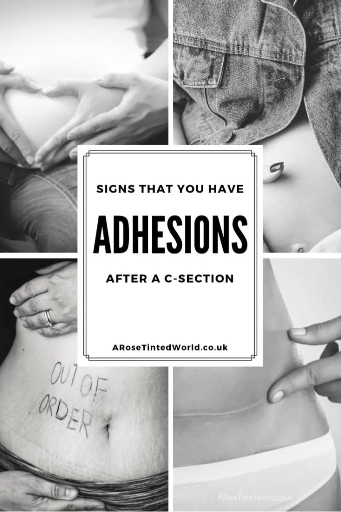 Adhesions After A C-Section