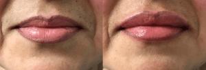 lip-filler-santa-rosa-juvederm-restylane