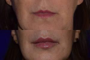 juvederm-volbella-santa-rosa-napa-sonoma-marin-novato-mill-valley-bay-area-plastic-surgery-2