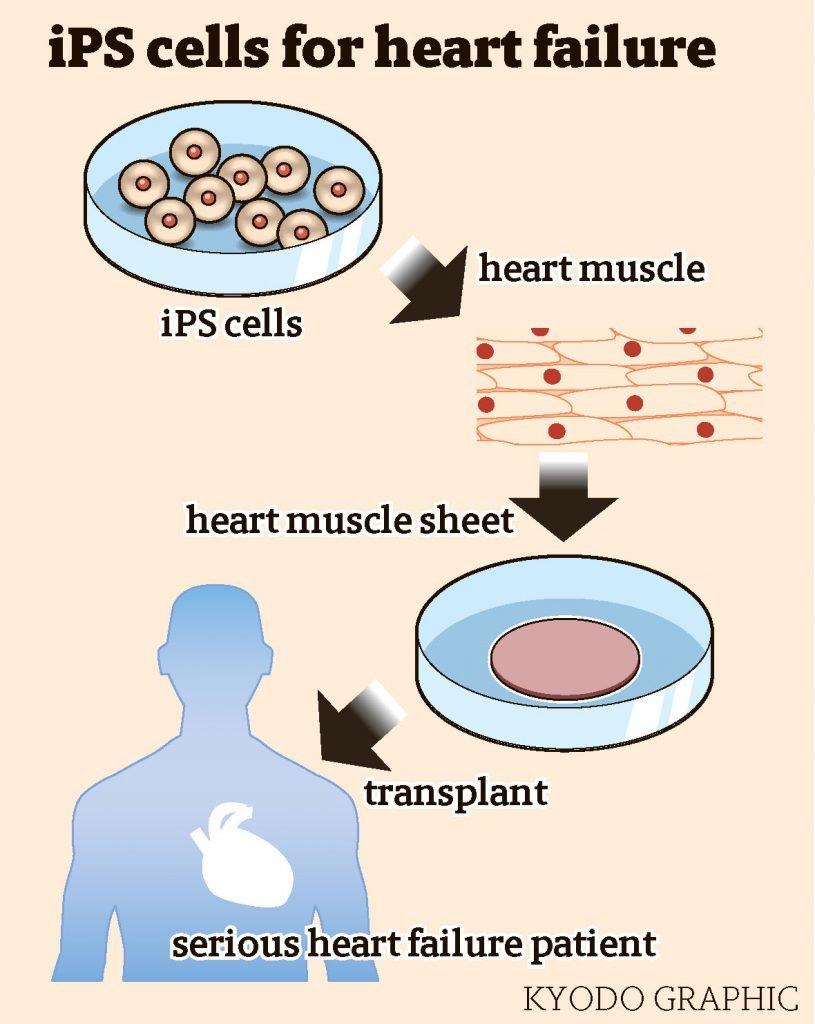epang Akan Lakukan Studi Klinis Untuk Pengobatan Gagal Jantung Dengan Menggunakan iPS Cells