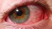 uveitis and rheumatoid arthritis