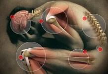 what does a rheumatoid arthritis flare feel like