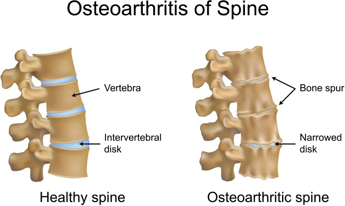 What is Spondylosis – Osteoarthritis of the spine