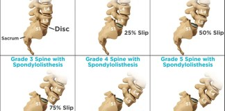 Stages of Spondylolithesis