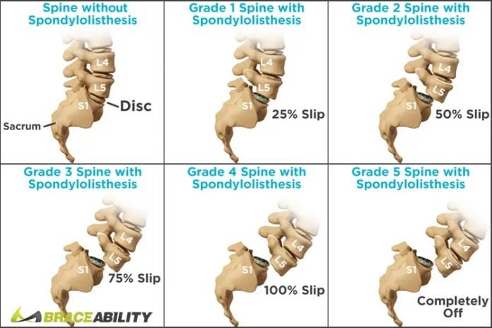 Stages of Spondylolithesis
